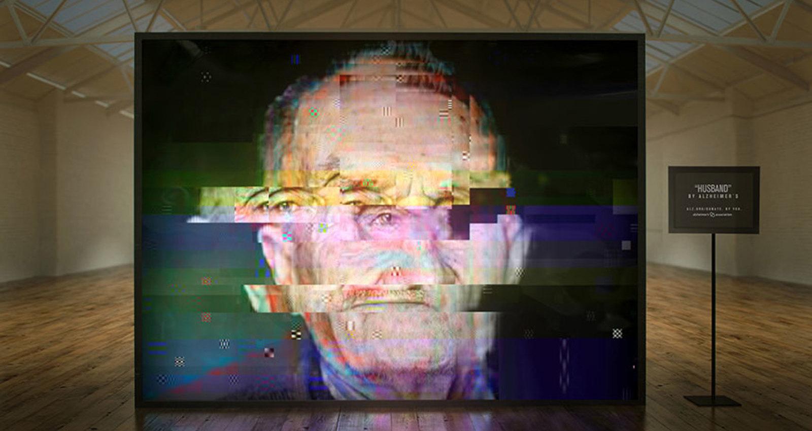 Alzheimer's Gallery