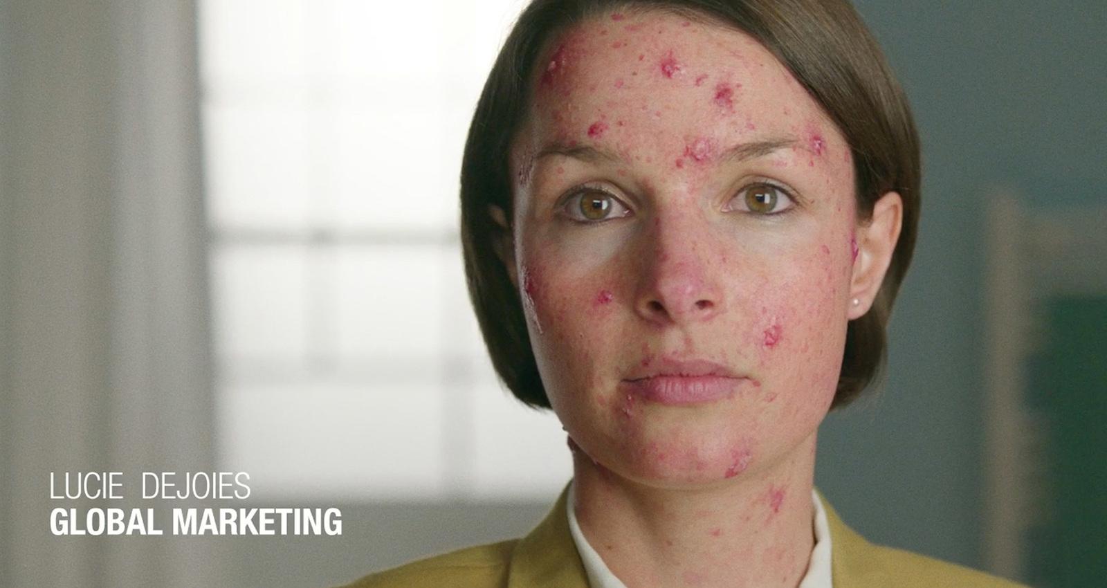 Shared Skin Initiative