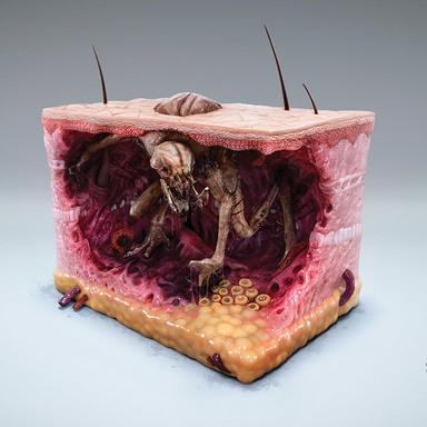 Melanoma Monsters