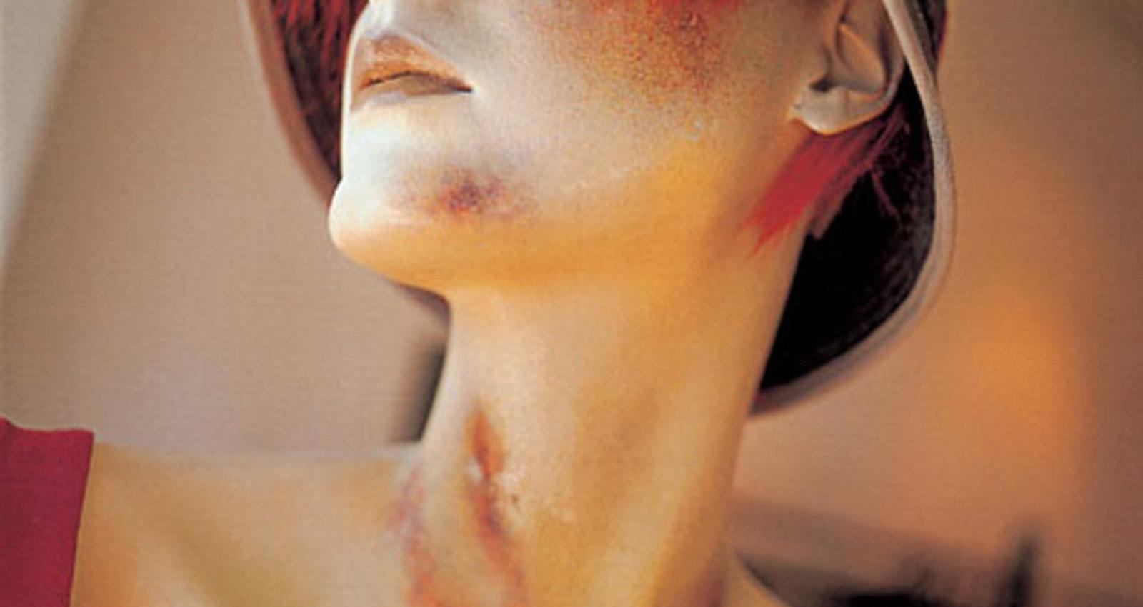 Bruised Mannequins